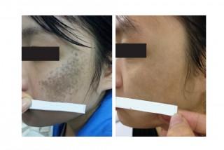 Hình ảnh trước sau điều trị