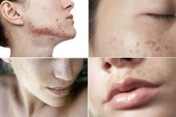 Điều trị chứng tăng sắc tố da