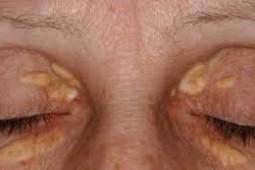 Điều trị dứt điểm u mỡ vàng